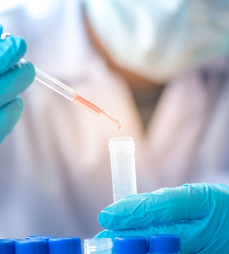 WHAT IS CHEMICAL TESTING